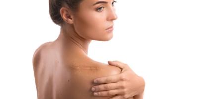 Mazání na jizvy aporanění pokožky